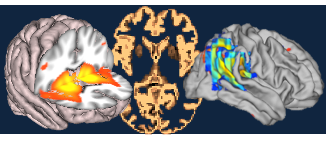 Neuroimaging provides a window into the living brain, and is an increasingly vital experimental medicine tool for neuro-psychiatric disease. With a particular focus on early and pre-clinical disease, we explore how the brain changes before symptoms take hold.