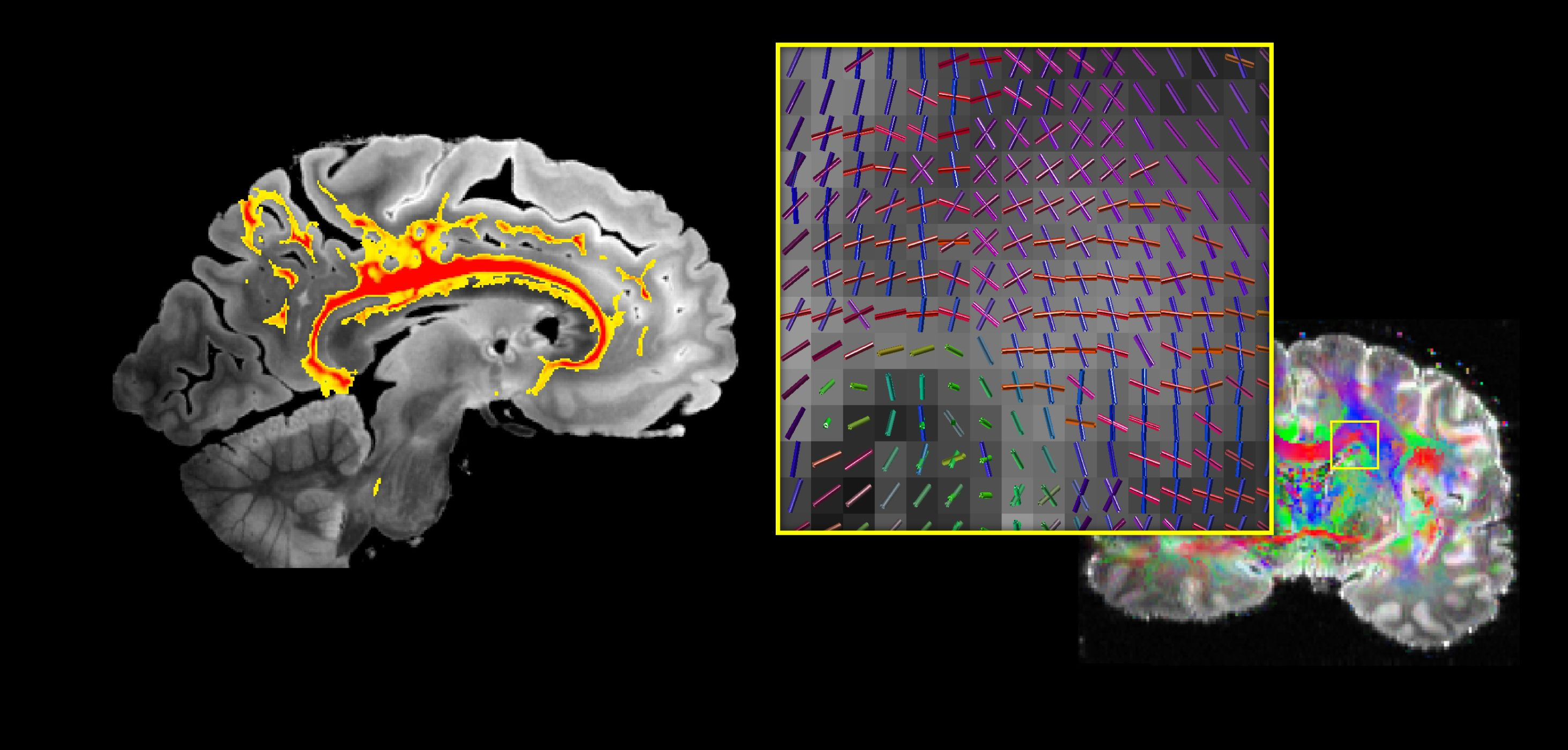 We are developing the next generation of diffusion imaging techniques, enabling fine-scale investigations with improved accuracy and sensitivity of the brain's information pathways.