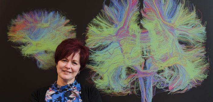 Bid to prevent Alzheimer's dementia signs up first study recruit