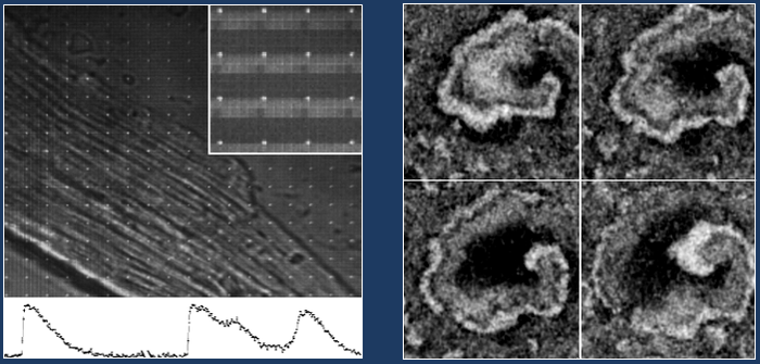 New technologies for imaging excitable cells
