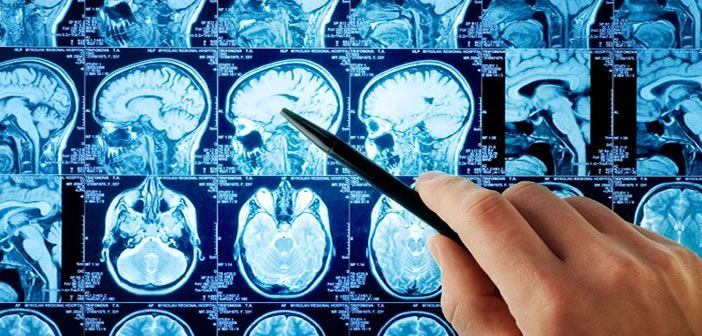 Neuroscience research investigates diseases and treatment of the nervous system