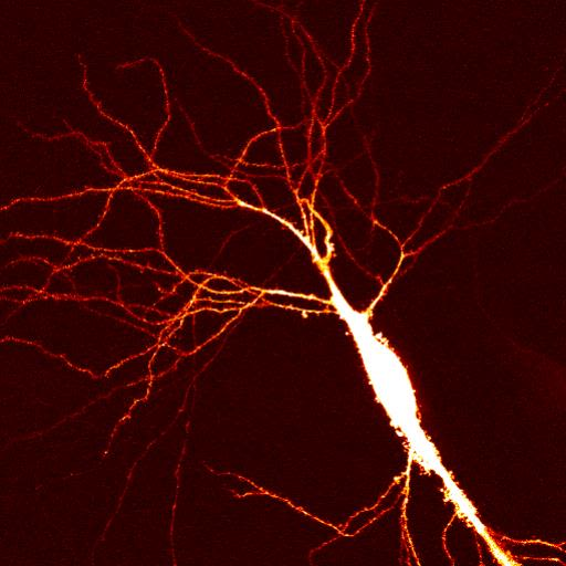 We are interested in synaptic transmission. We wish to understand the way in which synapses behave when functioning normally but also how they change during memory formation or when struck by diseases such as Schizophrenia or Alzheimer's.