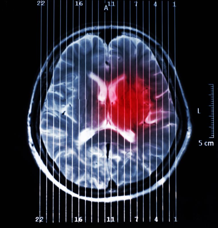 Brain Tumour North West (BTNW) involves the Universities of Central Lancashire, Wolverhampton, Liverpool and Keele, together with the Lancashire Teaching Hospitals, Clatterbridge Centre for Oncology and Walton Centre NHS Trusts, in a new strategic alliance designed to consolidate and exploit clinical and research-based brain tumour expertise which currently exists within the region.