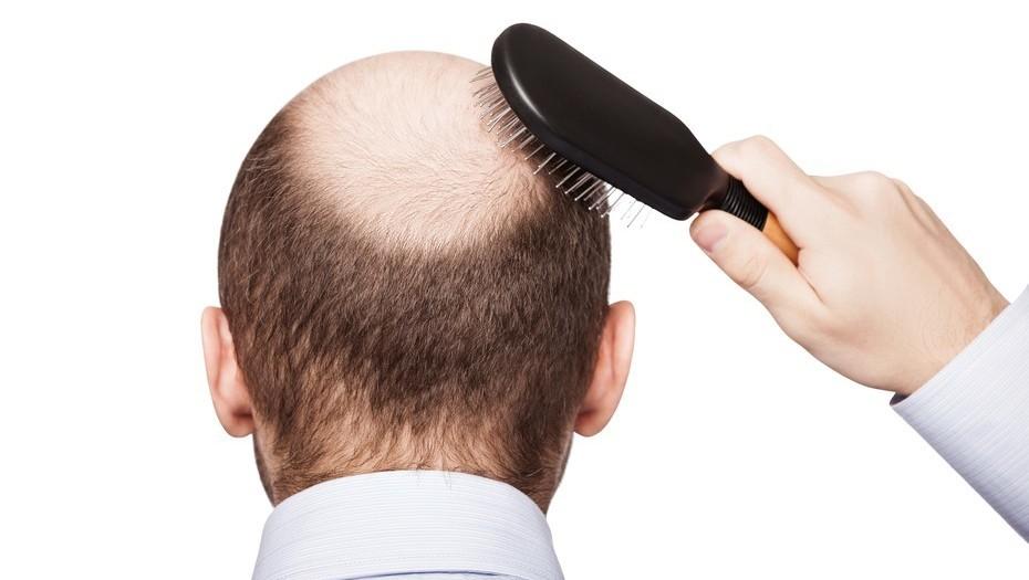 La caída del pelo afecta a mucha gente