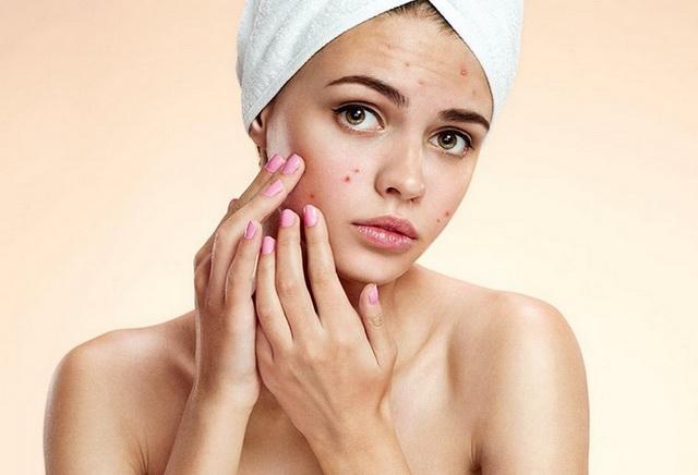 Чем лечить гормональные прыщи на лице