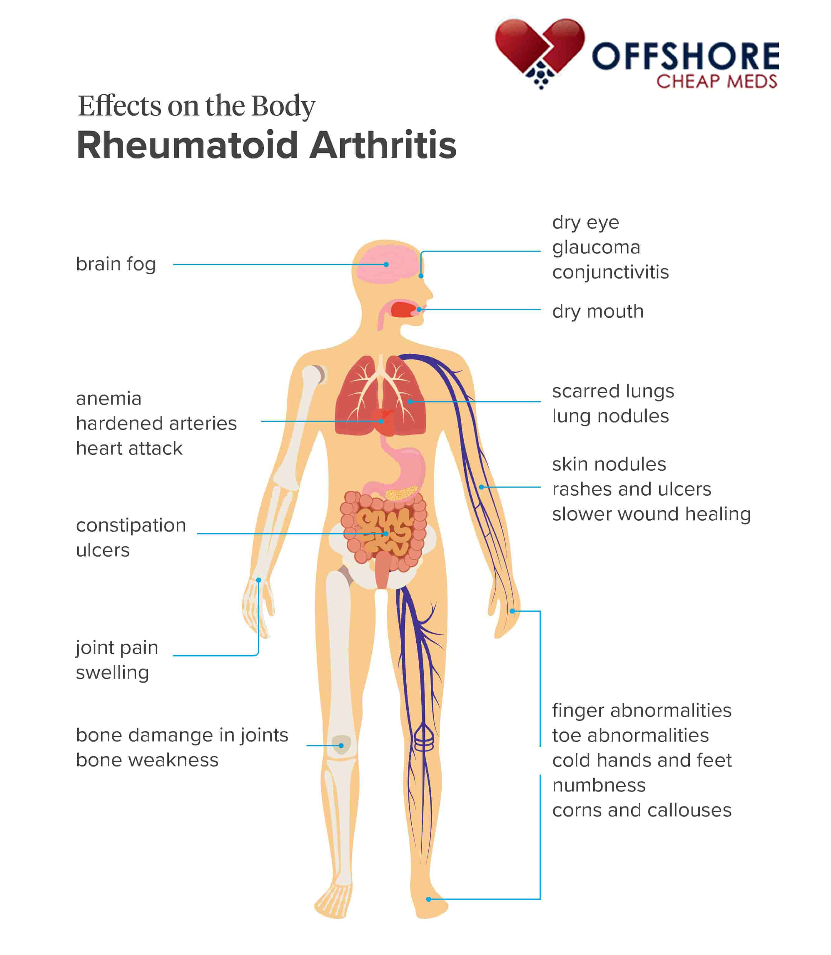 effects on the body of rheumatoid arthritis infographic OffshoreCheapMeds.com mkqlfl What Are The Complications Of Rheumatoid Arthritis?