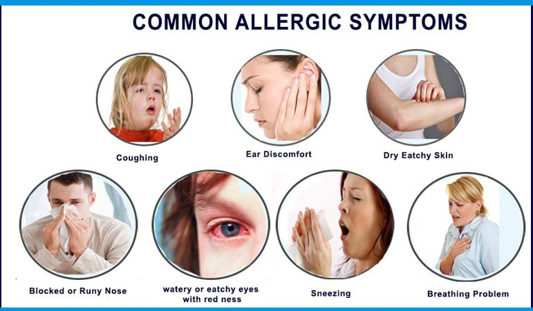 Common allergic symptoms