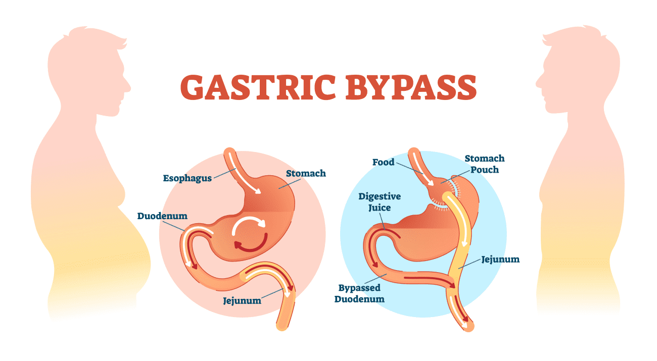 what is the recovery time for gastric sleeve surgery