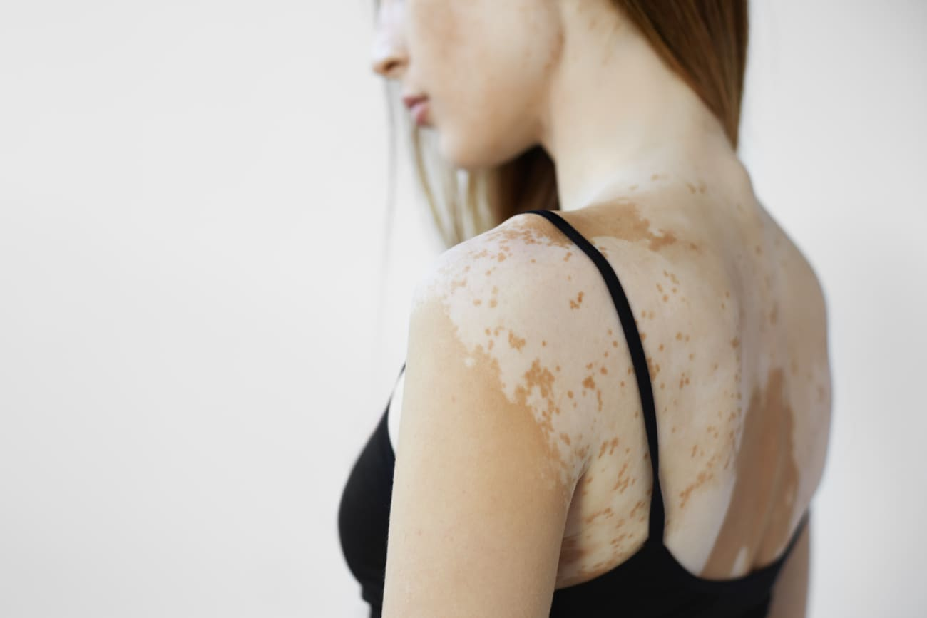 Why Do You Get Vitiligo Causes And Symptoms Explained By A Medical Doctor