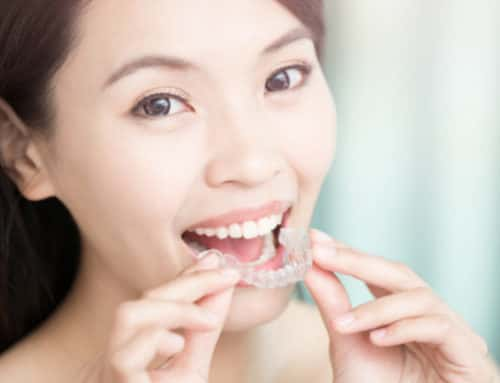 Price of Invisalign in Singapore and costing breakdown