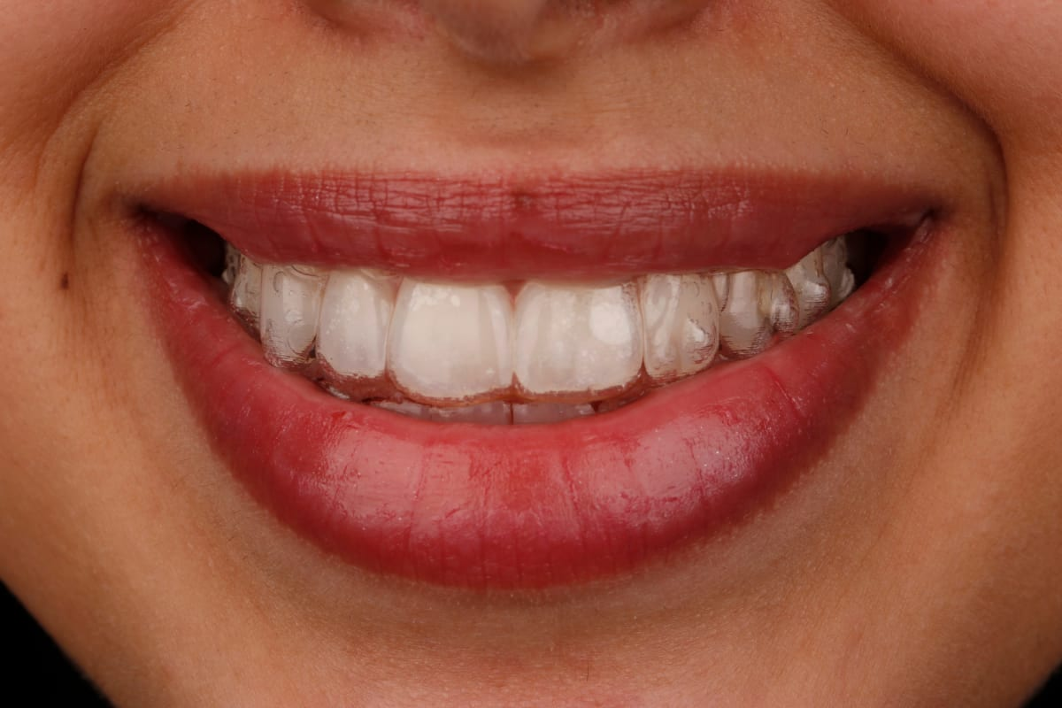 The Ultimate Guide to Comparing Invisalign and Other Clear ...