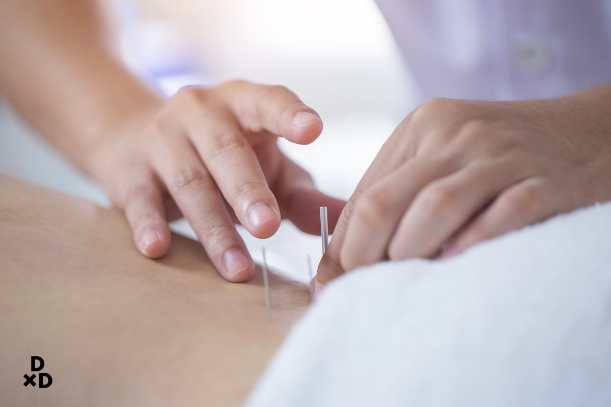 acupuncture for period cramps