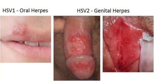 Genital herpes std testing singapore