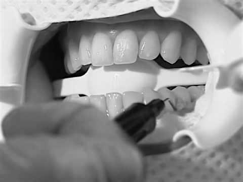 Zoom teeth whitening Singapore
