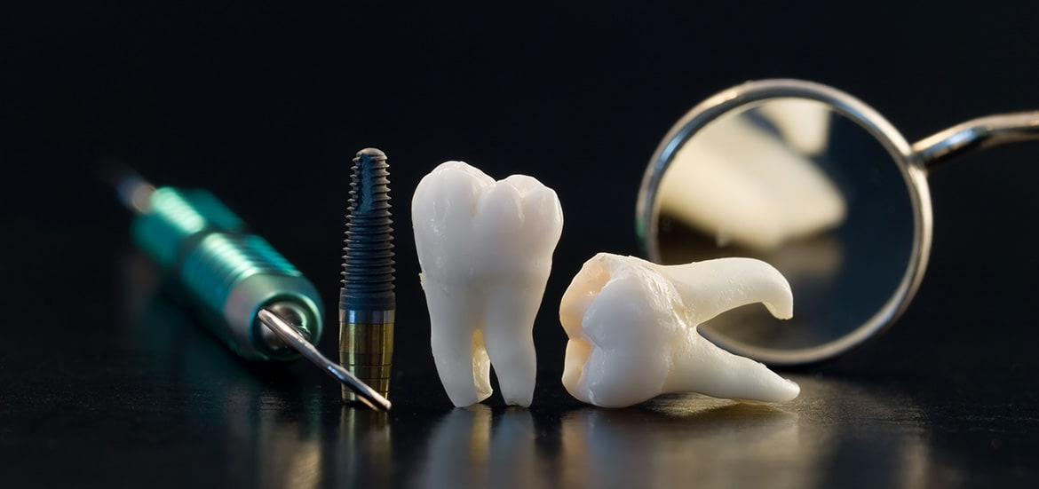 Five Reasons Why Dental Implants Fail undefined