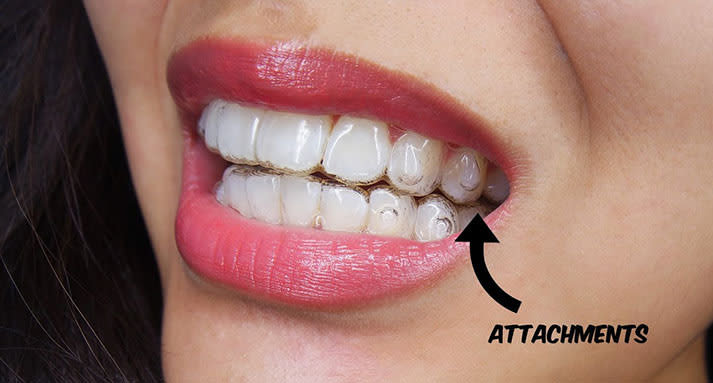 6 Hacks After Invisalign For Perfect Teeth undefined