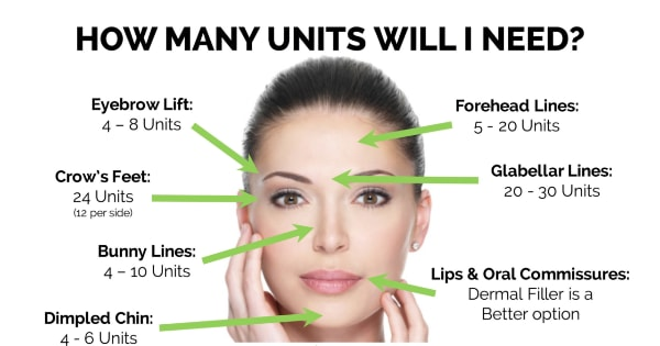 Botox Costs In Singapore: The Inside Scoop From An Aesthetic