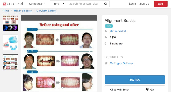 Orthodontist braces Singapore