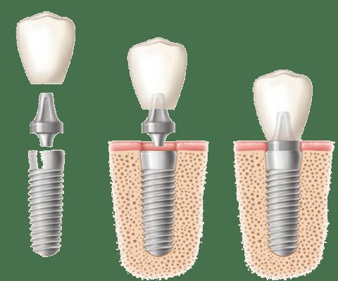 tooth implant Singapore