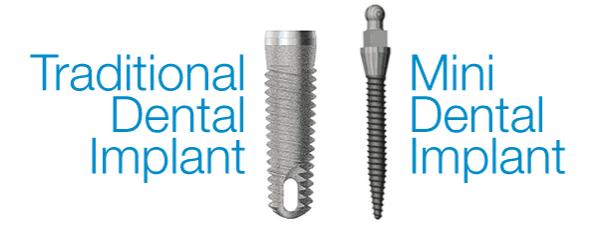 mini dental implants Singapore