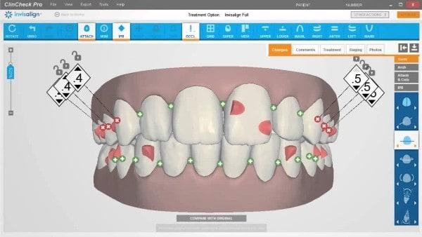 clincheck screen for invisalign treatment