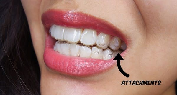 woman with invisalign on her teeth