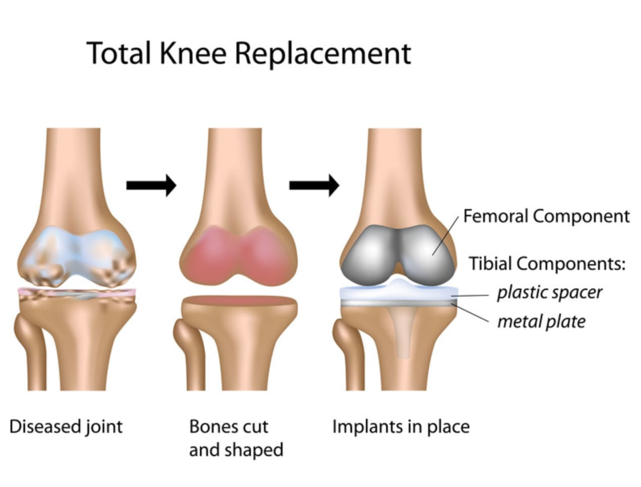 Knee replacement Singapore