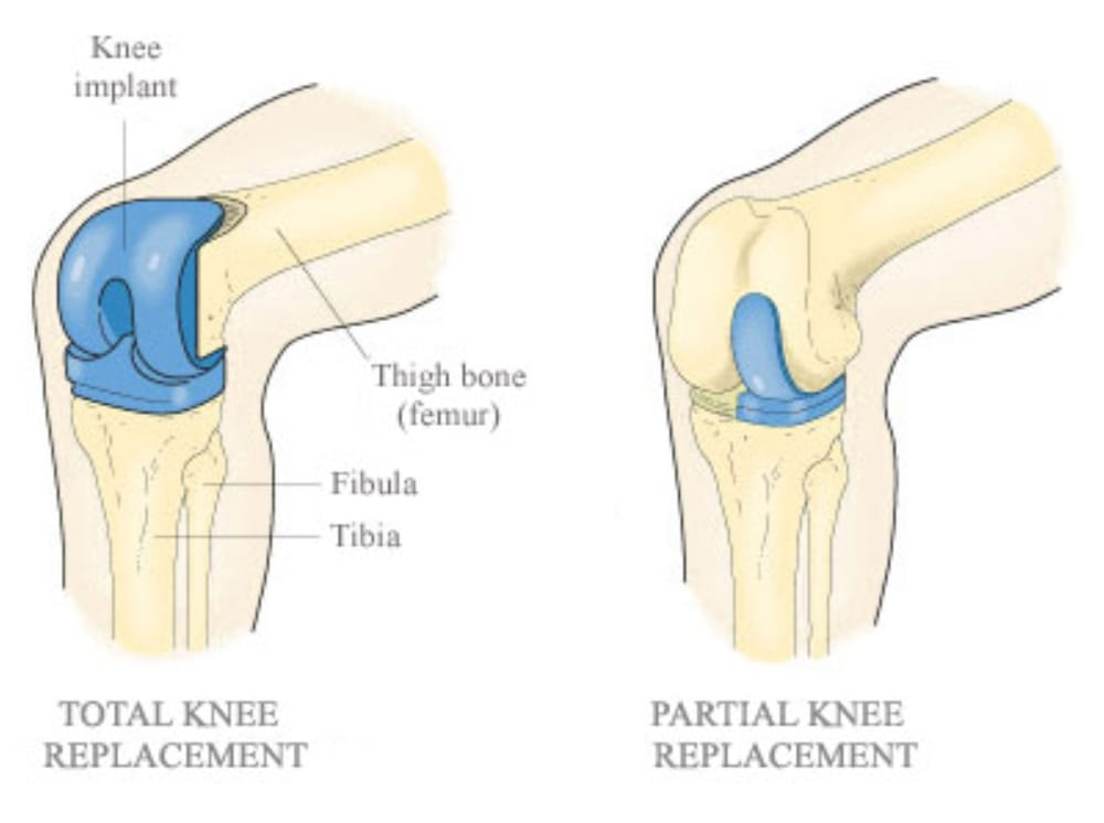 Everything You Need To Know About Knee Replacements In Singapore (2019)