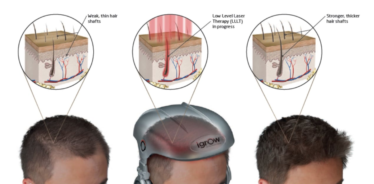 Low-Level Laser Therapy Singapore