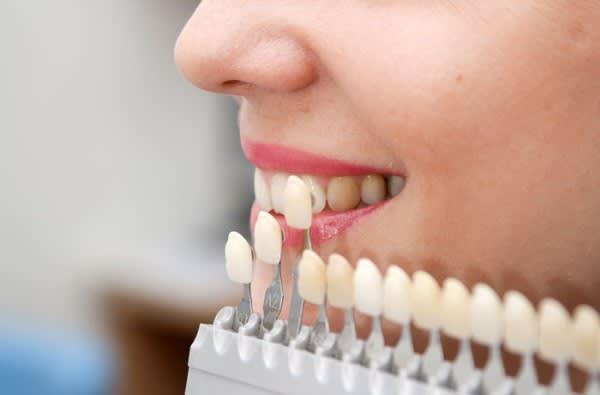 dental crown singapore