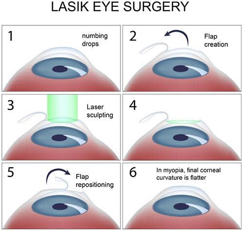 lasik illustrated diagram