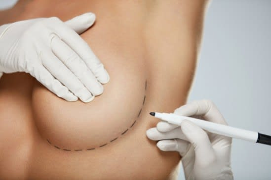 Incision Drawing for Breast Augmentation Surgery