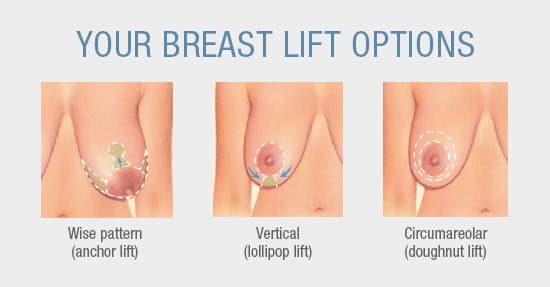 Comparison of different breast lift options