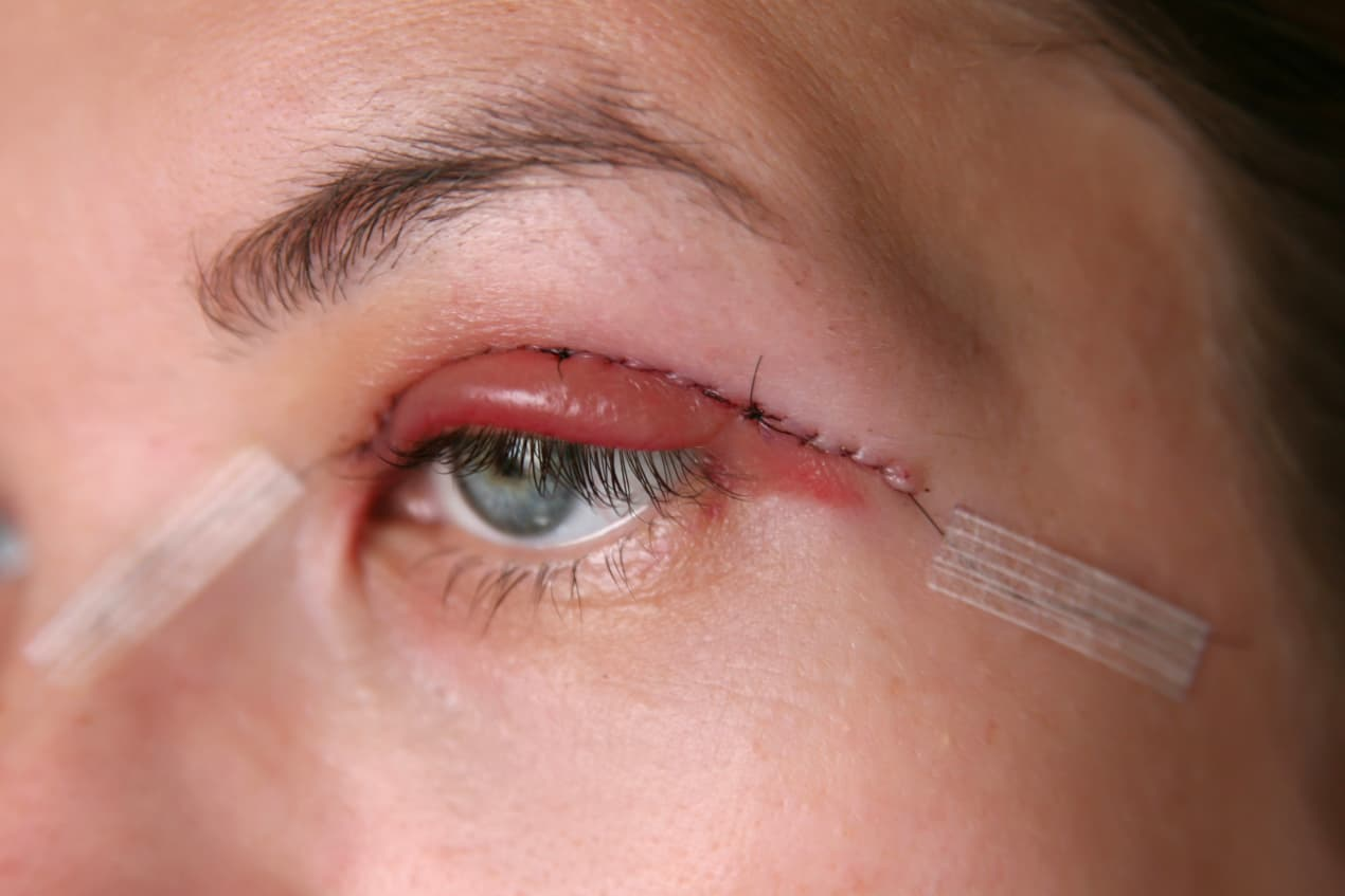 Suture Method vs Cutting Method For Double Eyelid Surgery: Factors To Consider  undefined