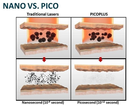 picosecond vs nanosecond laser