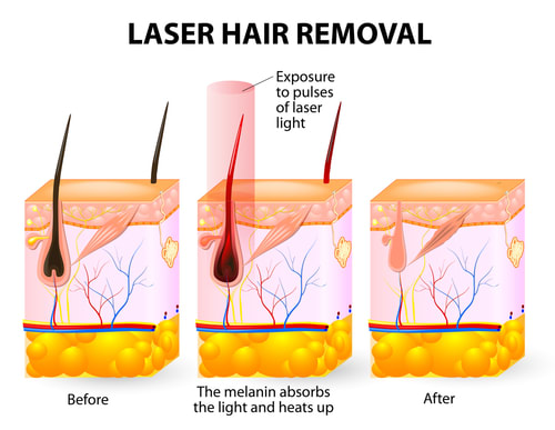 The Complete Guide To Permanent Hair Removal In Singapore 5