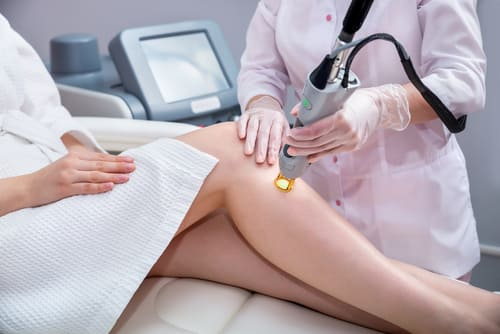 The Complete Guide To Permanent Hair Removal In Singapore 4