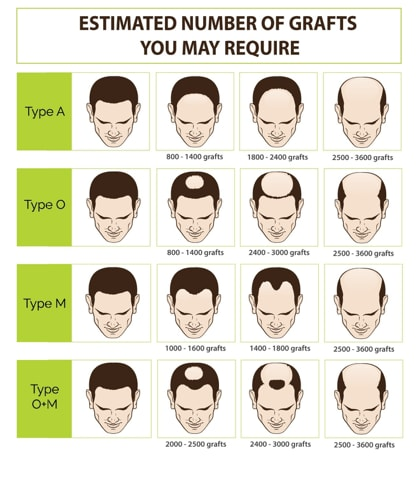 The Ultimate Guide To Getting A Hair Transplant In Singapore (2019)