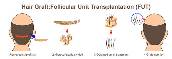 hair transplantation (FUT)