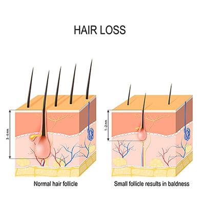 hair loss singapore