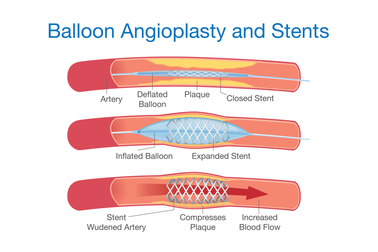 angioplasty procedure and cost in Singapore