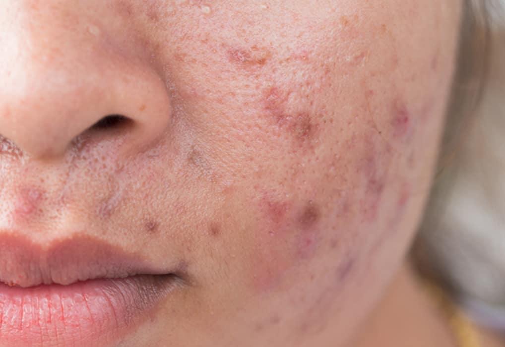 acne pigment mark singapore