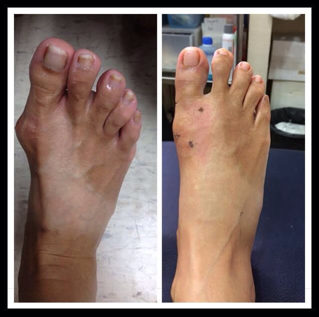 Bunion Recovery in Singapore after surgery