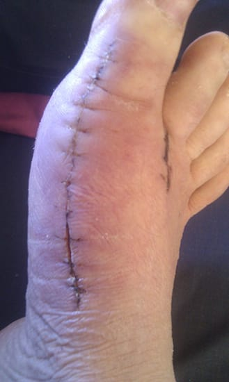 Open scar from bunion surgery singapore