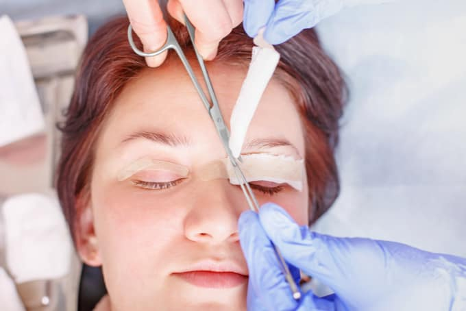 ptosis surgery in singapore