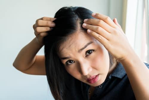hair transplant doctor Singapore