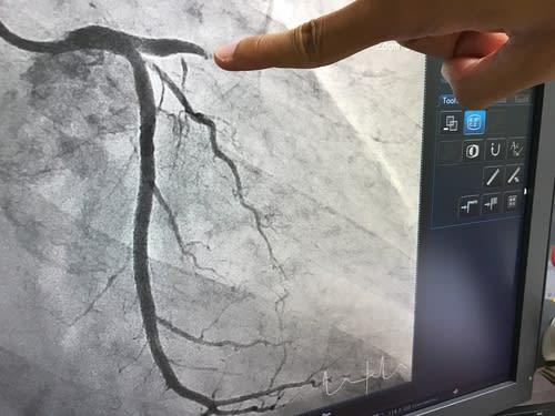 angiogram in Singapore