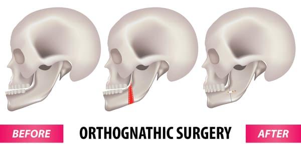 jaw surgery singapore