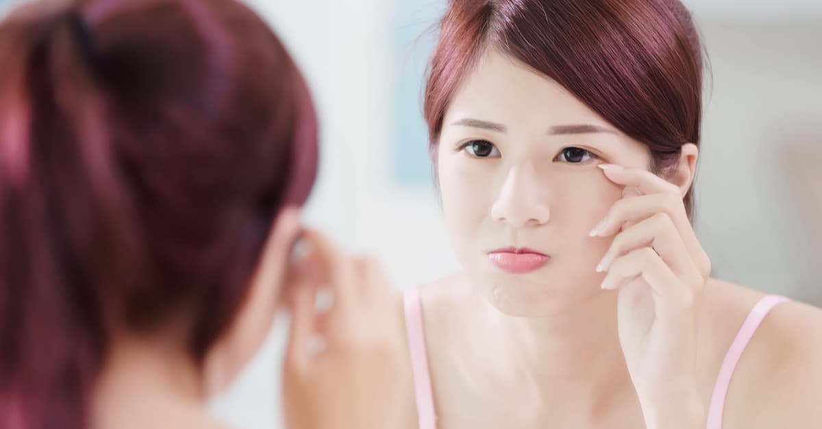 The Complete Guide To Dark Eye Circle Treatments In Singapore (2019) undefined