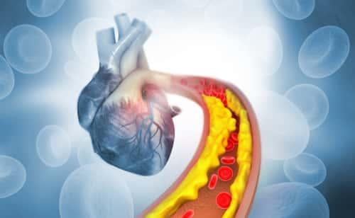 blocked heart vessels